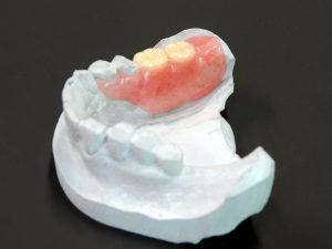 ノンクラスプデンチャー臼歯(050201035)