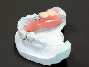 レジン床臼歯(050201037)