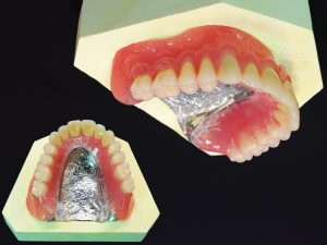金属床総義歯(050201039)